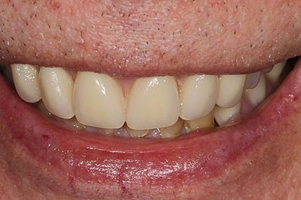 John after smile makeover at Dental Beauty Croydon in south london