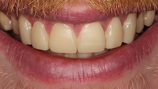 steven dental bonding london dentist